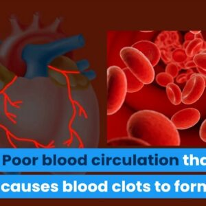Warning to Pilots, Flight Crew & Passengers, how to prevent Blood Clot?